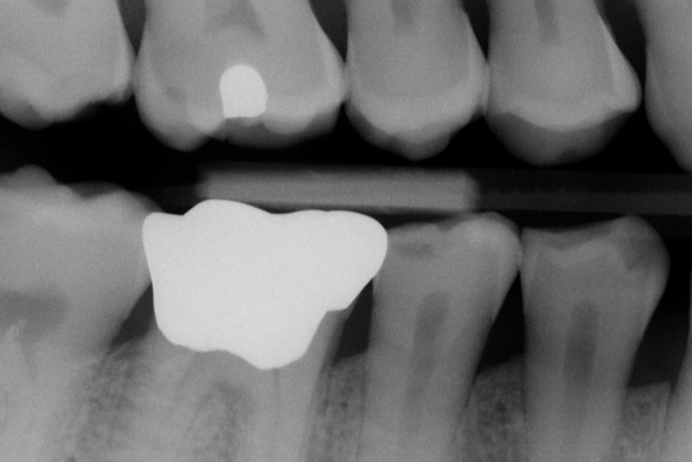 Low Radiation Digital X-Ray Imaging